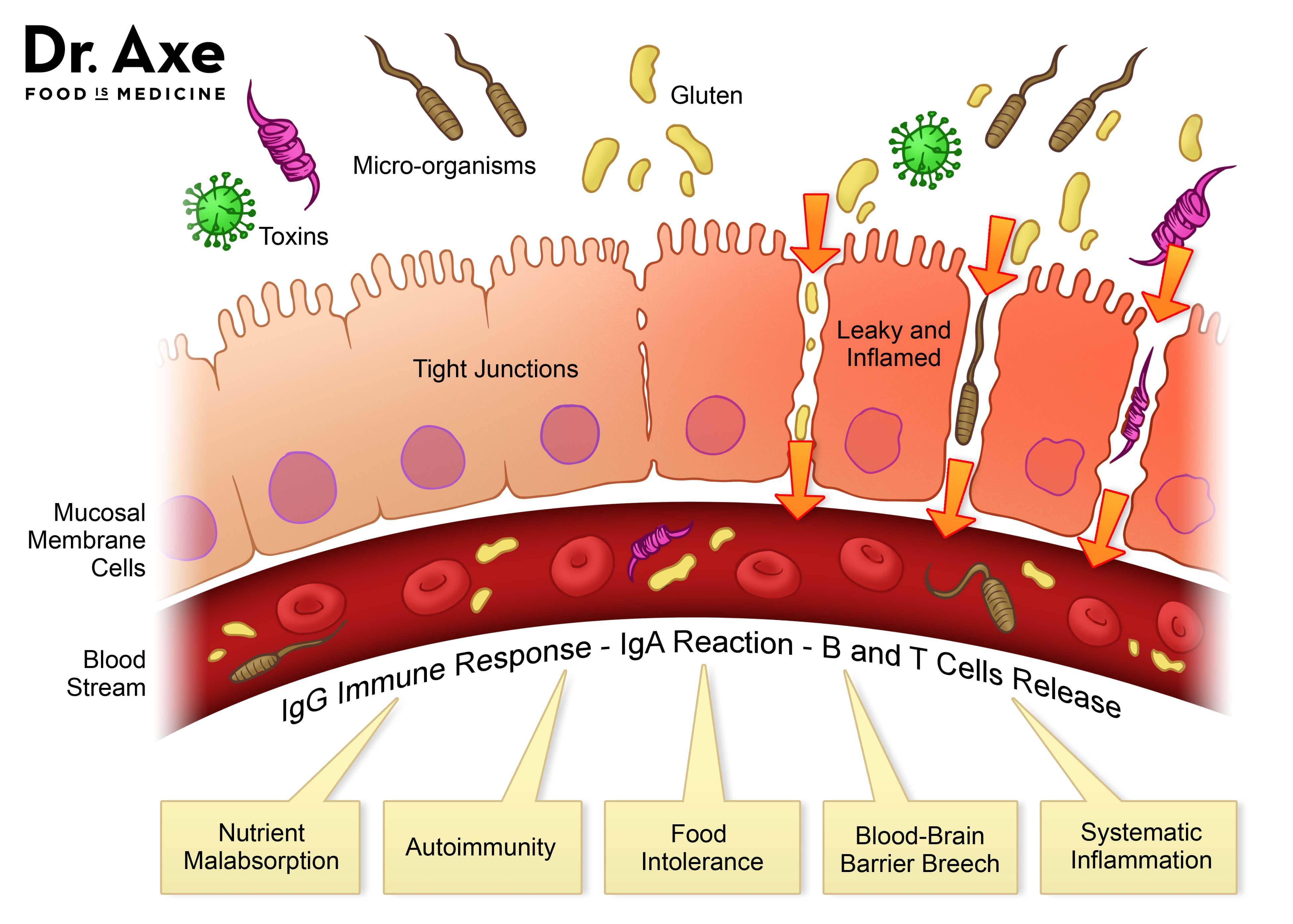 Resultado de imagem para leaky gut